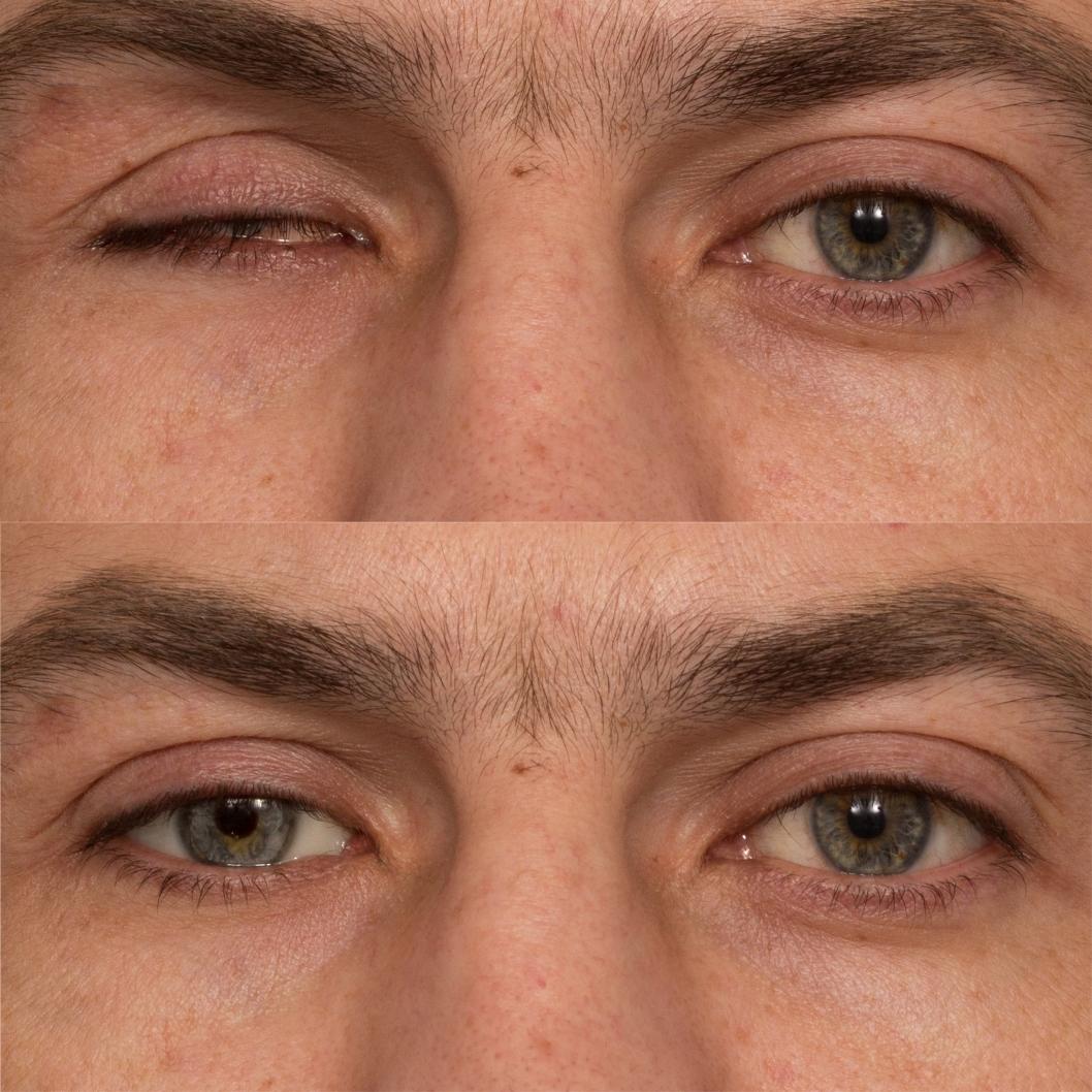 Результат глазного протезирования